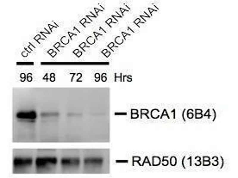 Western Blotting (WB) image for anti-BRCA1 antibody (Breast Cancer 1) (AA 341-748) (ABIN136313)