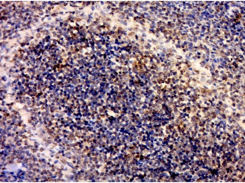 Immunohistochemistry (Paraffin-embedded Sections) (IHC (p)) image for anti-Interleukin 1 Receptor, Type I (IL1R1) (AA 510-545) antibody (ABIN747743)