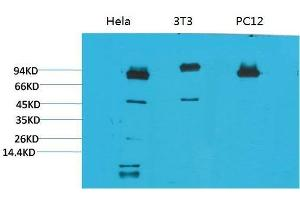 Image no. 2 for anti-Signal Transducer and Activator of Transcription 3 (Acute-Phase Response Factor) (STAT3) antibody (ABIN3188060)