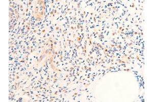 Image no. 3 for anti-Checkpoint Kinase 1 (CHEK1) (pSer280) antibody (ABIN6255160)