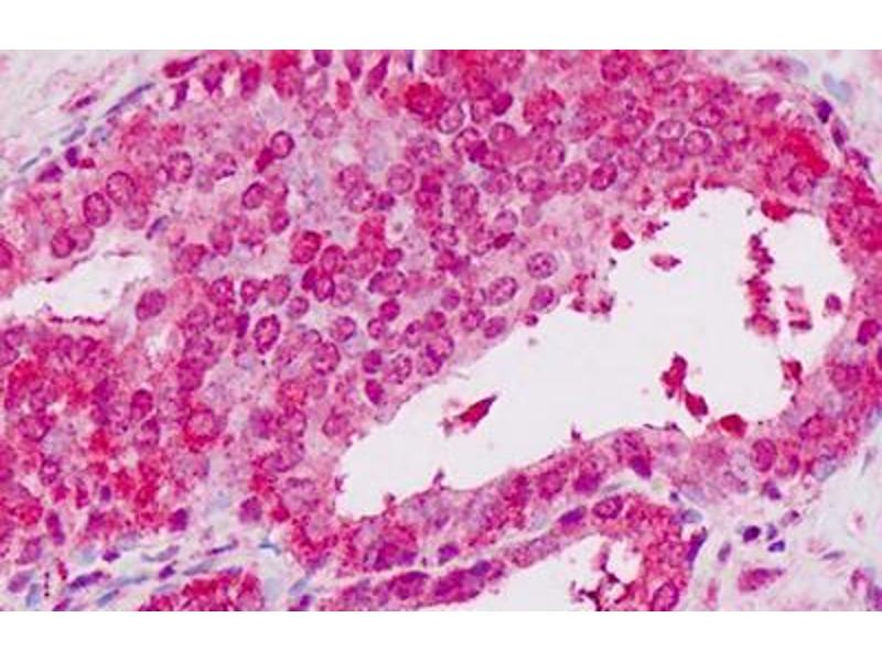Immunohistochemistry (IHC) image for anti-Signal Transducer and Activator of Transcription 2, 113kDa (STAT2) (C-Term) antibody (ABIN1804117)
