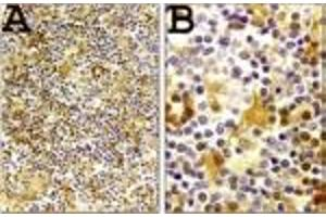 Immunohistochemistry (Paraffin-embedded Sections) (IHC (p)) image for anti-Caspase 1 antibody (CASP1) (AA 31-45) (ABIN123499)