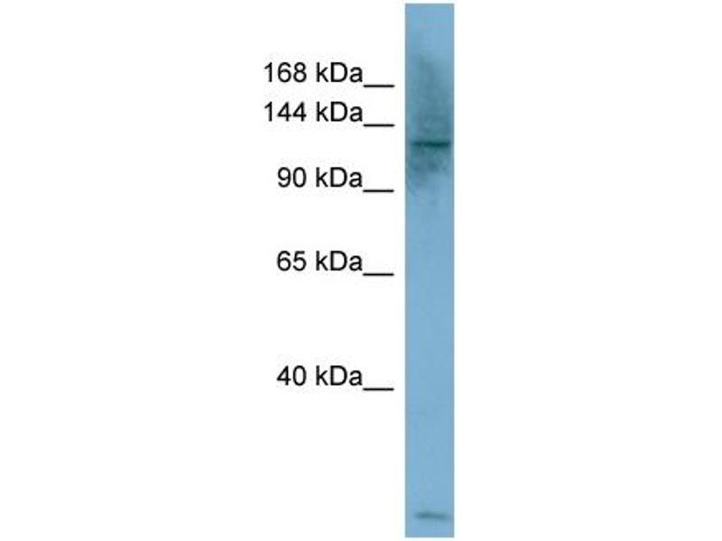 Western Blotting (WB) image for anti-phospholipase C, beta 1 (phosphoinositide-Specific) (PLCB1) (Middle Region) antibody (ABIN2786397)