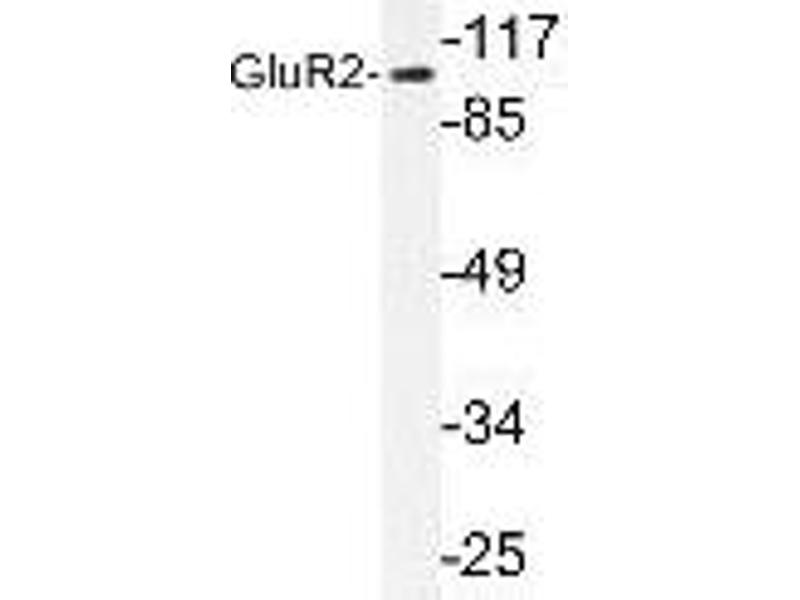 Western Blotting (WB) image for anti-GRIA2 antibody (Glutamate Receptor, Ionotropic, AMPA 2) (Tyr873) (ABIN447064)