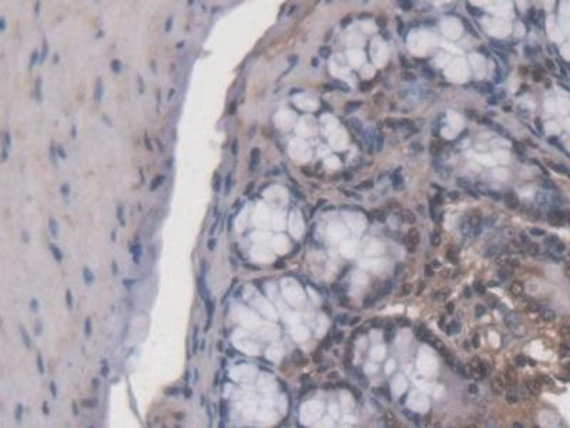 Immunohistochemistry (Paraffin-embedded Sections) (IHC (p)) image for anti-Adrenocortical Dysplasia Homolog (Mouse) (ACD) (AA 21-175) antibody (ABIN6001868)