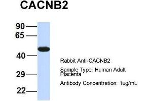 Image no. 1 for anti-Calcium Channel, Voltage-Dependent, beta 4 Subunit (CACNB4) (Middle Region) antibody (ABIN2774681)