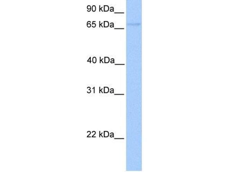 Western Blotting (WB) image for anti-Forkhead Box O1 (FOXO1) (Middle Region) antibody (ABIN2777689)