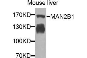 Image no. 1 for anti-Mannosidase, Alpha, Class 2B, Member 1 (MAN2B1) antibody (ABIN4904287)