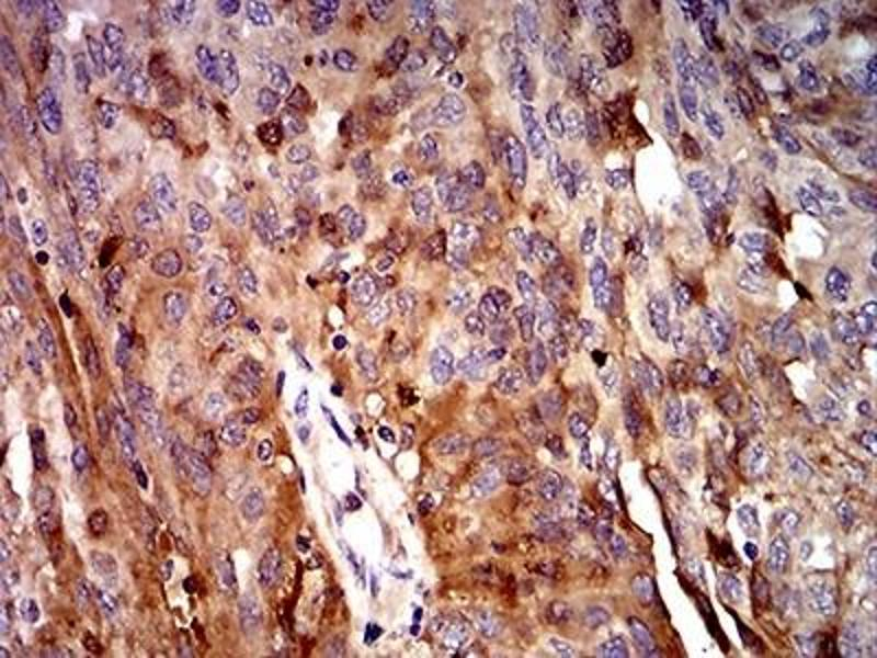 Immunohistochemistry (IHC) image for anti-Complement Component 3 (C3) (AA 1521-1649) antibody (ABIN5680961)