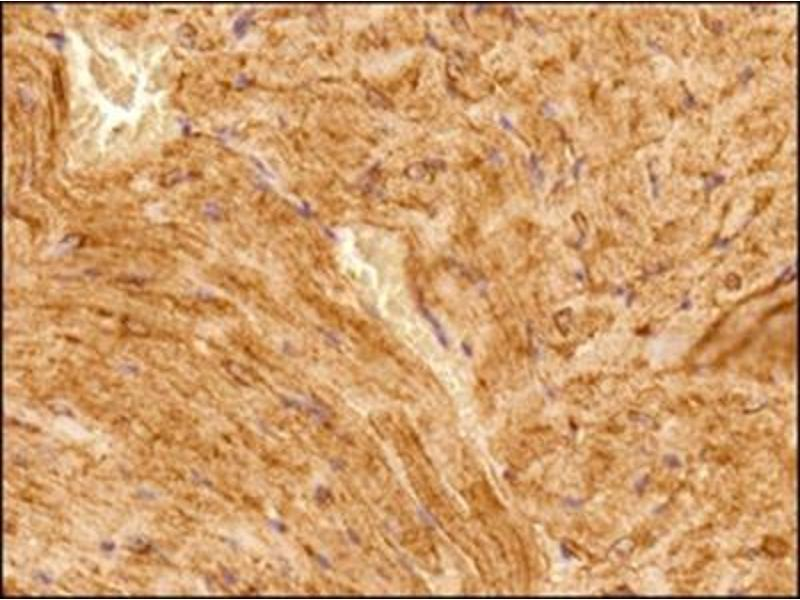 Immunohistochemistry (Paraffin-embedded Sections) (IHC (p)) image for anti-alpha Tubulin (TUBA1) antibody (ABIN152113)