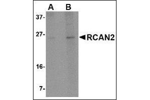 Image no. 2 for anti-Regulator of Calcineurin 2 (RCAN2) (Center) antibody (ABIN500577)