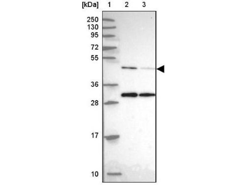 Western Blotting (WB) image for anti-ACTR3 antibody (ARP3 Actin-Related Protein 3 Homolog (Yeast)) (ABIN4278166)