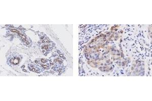 Immunohistochemistry (Paraffin-embedded Sections) (IHC (p)) image for anti-Wingless-Type MMTV Integration Site Family, Member 3A (WNT3A) (AA 19-352) antibody (ABIN449669)