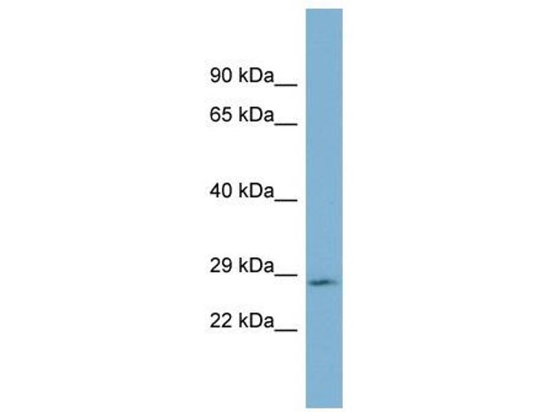 Western Blotting (WB) image for anti-Growth Hormone 2 (GH2) (Middle Region) antibody (ABIN2775499)