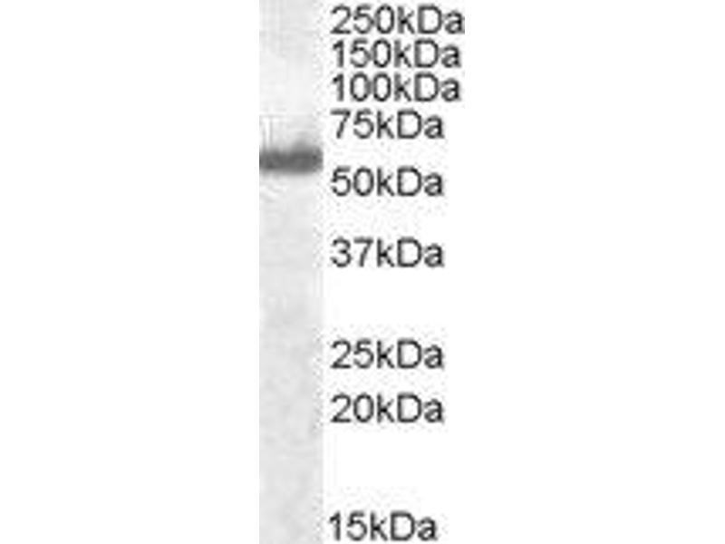 Western Blotting (WB) image for anti-Interferon Regulatory Factor 5 (IRF5) (C-Term) antibody (ABIN2563472)