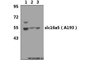 Image no. 1 for anti-Solute Carrier Family 16 (Monocarboxylic Acid Transporters), Member 5 (SLC16A5) (AA 161-210) antibody (ABIN6711611)