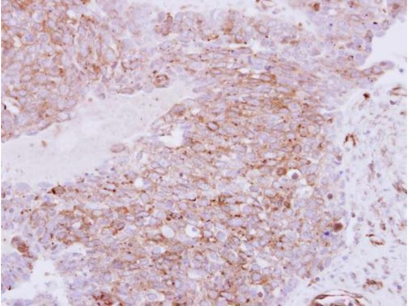 Immunohistochemistry (IHC) image for anti-Ras Homolog Gene Family, Member C (RHOC) (Center) antibody (ABIN2854791)