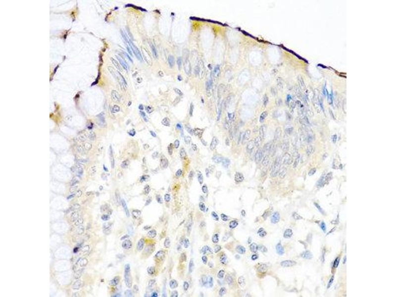 Immunohistochemistry (IHC) image for anti-Neuregulin 4 (NRG4) antibody (ABIN1873958)