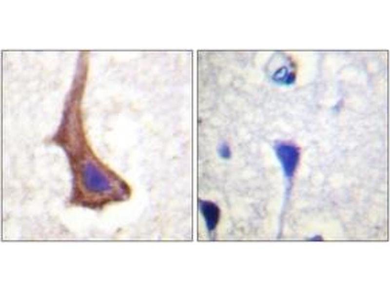 Immunohistochemistry (IHC) image for anti-CSF1R antibody (Colony Stimulating Factor 1 Receptor) (ABIN1532578)