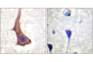 Immunohistochemistry (IHC) image for anti-Colony Stimulating Factor 1 Receptor (CSF1R) (AA 531-580) antibody (ABIN1532578)