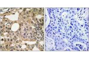 Immunohistochemistry (IHC) image for anti-BCL2-Like 1 (BCL2L1) (AA 81-130) antibody (ABIN1533140)