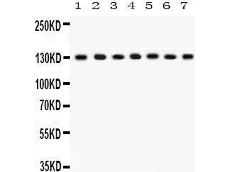 Western Blotting (WB) image for anti-Discs, Large Homolog 1 (Drosophila) (DLG1) (AA 1-165) antibody (ABIN3043562)