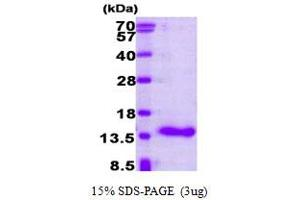 Image no. 1 for Cellular Retinoic Acid Binding Protein 1 (CRABP1) (AA 1-137) protein (ABIN667743)