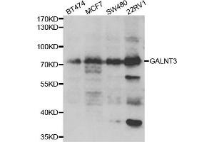 Image no. 1 for anti-UDP-N-Acetyl-alpha-D-Galactosamine:polypeptide N-Acetylgalactosaminyltransferase 3 (GalNAc-T3) (GALNT3) antibody (ABIN2562749)