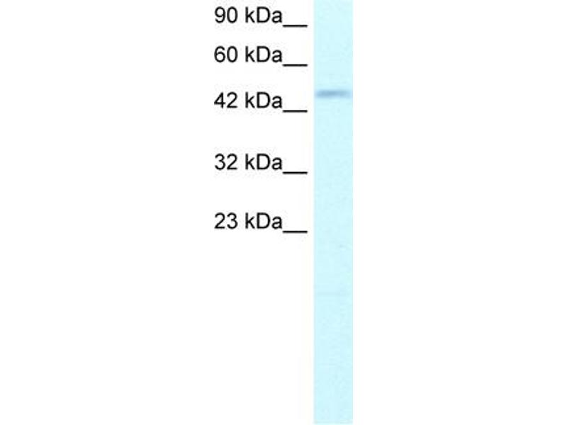 Western Blotting (WB) image for anti-DP2 antibody (Transcription Factor Dp-2 (E2F Dimerization Partner 2)) (N-Term) (ABIN182814)