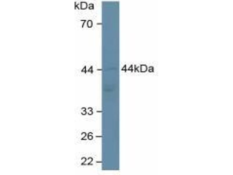 Adiponectin Receptor 2 (ADIPOR2) ELISA Kit (3)