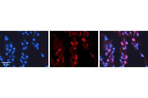 Image no. 1 for anti-3'-phosphoadenosine 5'-phosphosulfate Synthase 2 (PAPSS2) (C-Term) antibody (ABIN2783448)