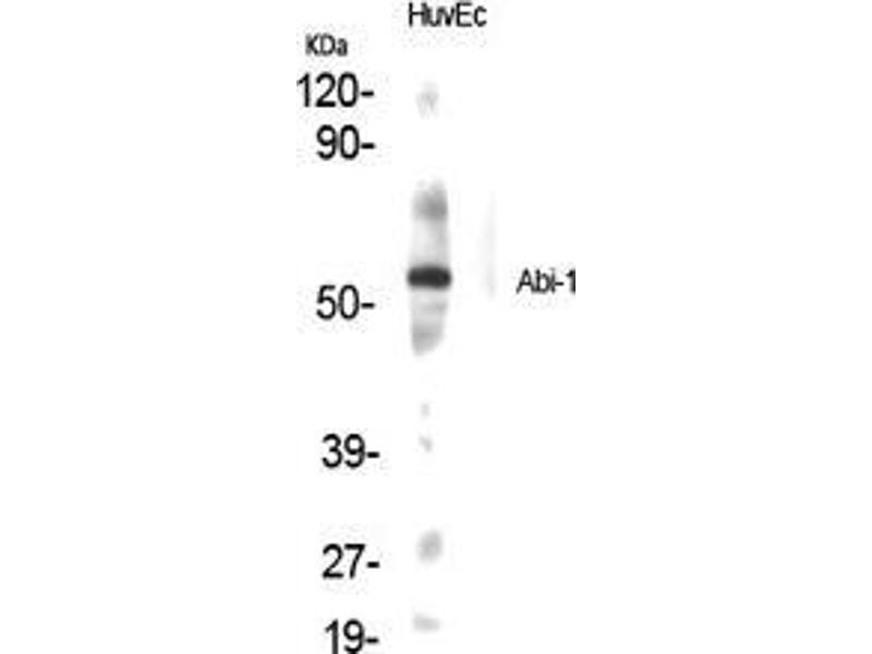 Western Blotting (WB) image for anti-Abl-Interactor 1 (ABI1) (Internal Region) antibody (ABIN3183132)