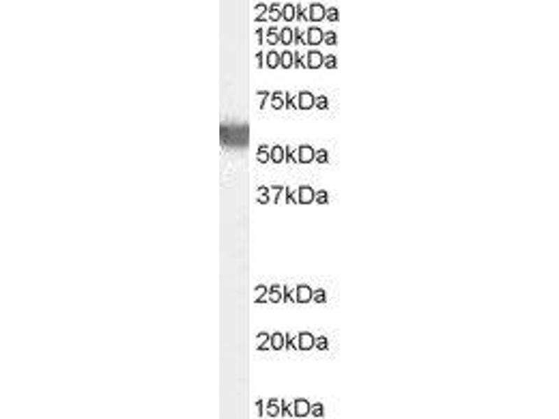 Western Blotting (WB) image for anti-Glucose-6-Phosphate Dehydrogenase (G6PD) (AA 308-320) antibody (ABIN2562716)