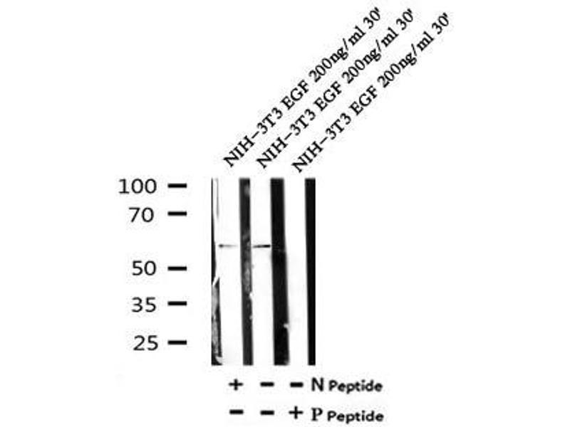 Image no. 3 for anti-Signal Transducing Adaptor Molecule (SH3 Domain and ITAM Motif) 2 (STAM2) (pTyr371) antibody (ABIN6269733)