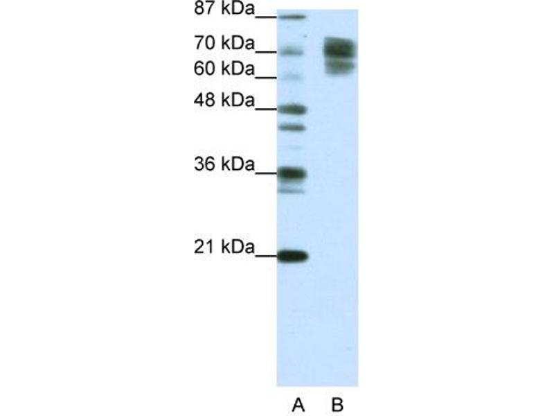 Western Blotting (WB) image for anti-CTNNB1 antibody (Catenin (Cadherin-Associated Protein), beta 1, 88kDa) (C-Term) (ABIN2792303)