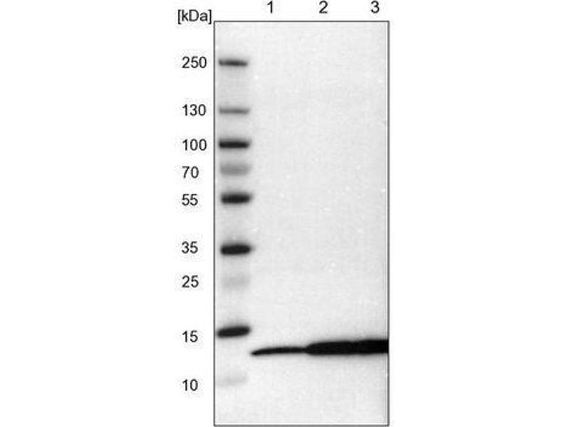 Western Blotting (WB) image for anti-Macrophage Migration Inhibitory Factor (Glycosylation-Inhibiting Factor) (MIF) antibody (ABIN4334481)