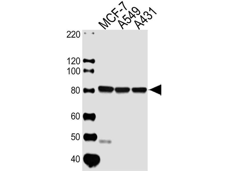 Western Blotting (WB) image for anti-Calpain 1, Large Subunit (CAPNL1) antibody (ABIN4907386)