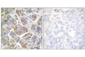 Image no. 3 for anti-Integrin beta 4 (ITGB4) (Tyr1510) antibody (ABIN1848054)