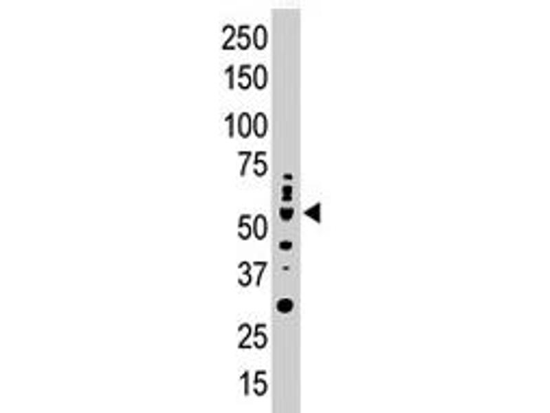 Western Blotting (WB) image for anti-Protein Kinase C, iota (PRKCI) antibody (ABIN545464)