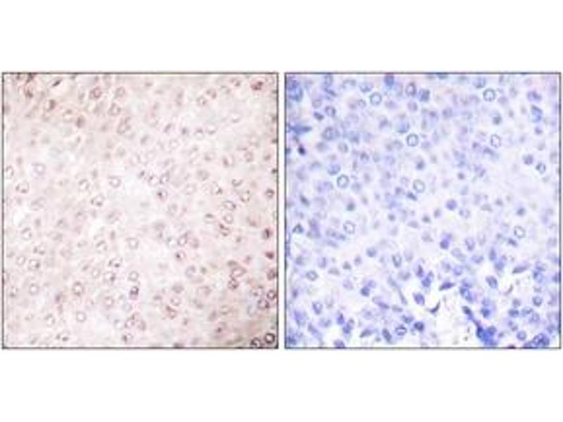Immunohistochemistry (Paraffin-embedded Sections) (IHC (p)) image for anti-K(lysine) Acetyltransferase 2B (KAT2B) (AA 783-832) antibody (ABIN1533368)