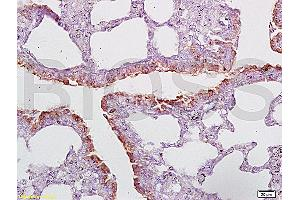 Image no. 1 for anti-CD2-Associated Protein (Cd2ap) (AA 580-630) antibody (ABIN669486)
