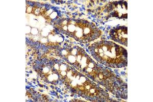 Immunohistochemistry (IHC) image for anti-Tumor Necrosis Factor (Ligand) Superfamily, Member 11 (TNFSF11) antibody (ABIN1875141)