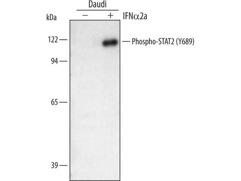 Western Blotting (WB) image for anti-Signal Transducer and Activator of Transcription 2, 113kDa (STAT2) (pTyr689) antibody (ABIN4900632)
