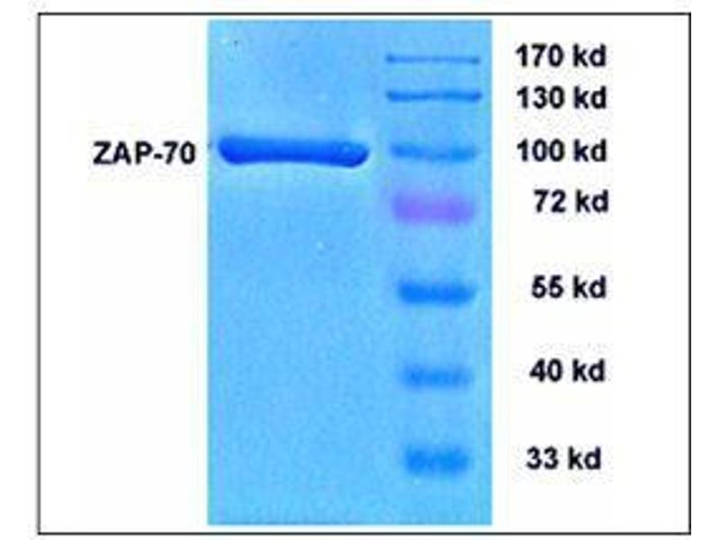 SDS-PAGE (SDS) image for zeta-Chain (TCR) Associated Protein Kinase 70kDa (ZAP70) (Active) protein (ABIN411959)