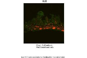Image no. 3 for anti-GLI Family Zinc Finger 2 (GLI2) (Middle Region) antibody (ABIN2777474)
