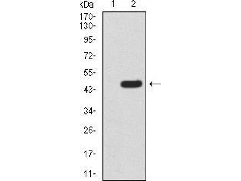 Western Blotting (WB) image for anti-RAD23 Homolog A (S. Cerevisiae) (RAD23A) (AA 1-363) antibody (ABIN5542637)