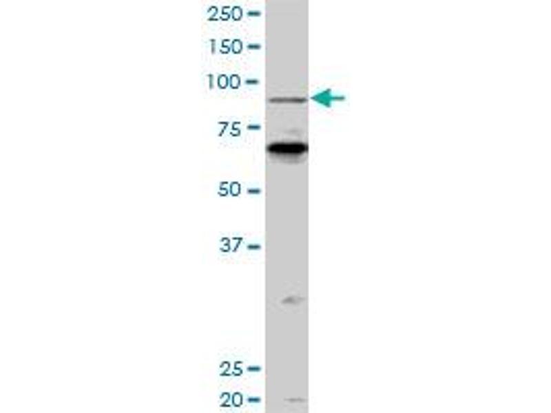 Western Blotting (WB) image for anti-KAT2B antibody (K(lysine) Acetyltransferase 2B) (AA 353-452) (ABIN522306)