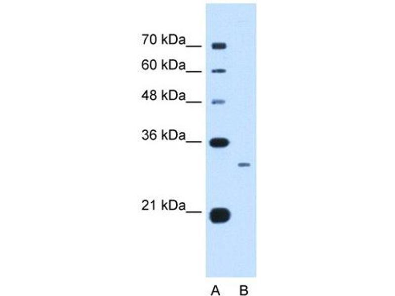 Western Blotting (WB) image for anti-Complement Component 1, Q Subcomponent, B Chain (C1QB) (C-Term) antibody (ABIN634558)