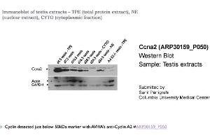 Western Blotting (WB) image for anti-Cyclin A2 (CCNA2) (C-Term) antibody (ABIN2779289)