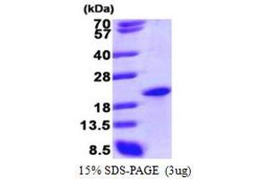 Image no. 1 for Sin3A-Associated Protein, 18kDa (SAP18) (AA 20-172) protein (His tag) (ABIN666775)
